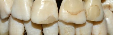 Photo of Victim's teeth